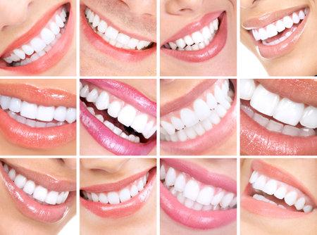 Belles dents jeune femme. Close up Banque d'images - 5604168