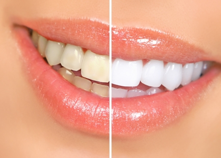 Mouth and teeth before and after whitening