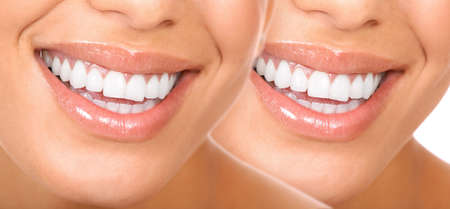 Beautiful young woman smile and teeth. Stock Photo - 7317219