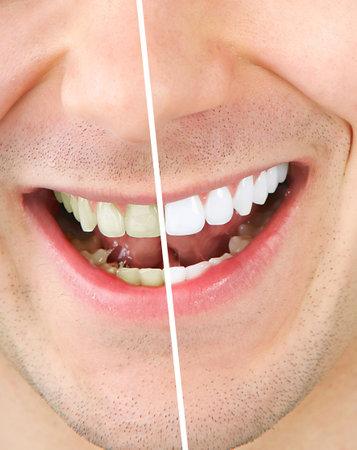 dientes sucios: Dientes masculinos antes y despu�s de blanqueamiento