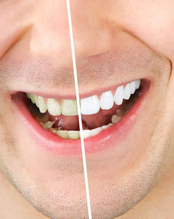 human tooth: Male teeth before and after whitening
