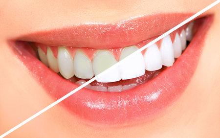 Beautiful young woman teeth. Whitenning  Zdjęcie Seryjne