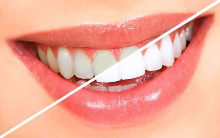 Belle jeune femme dents. Whitenning  Banque d'images - 8074335