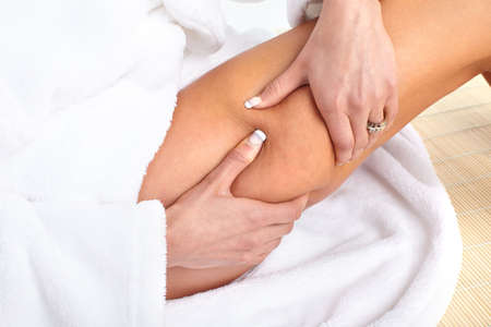 cellulite: Mujer comprobaci�n celulitis.   Foto de archivo