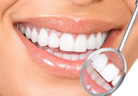 women smile: teeth Stock Photo