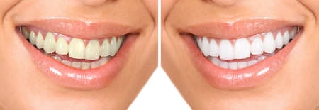 dientes sanos: Dientes sanos