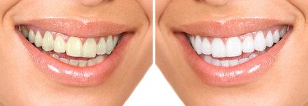 zuby: Healthy teeth Reklamní fotografie