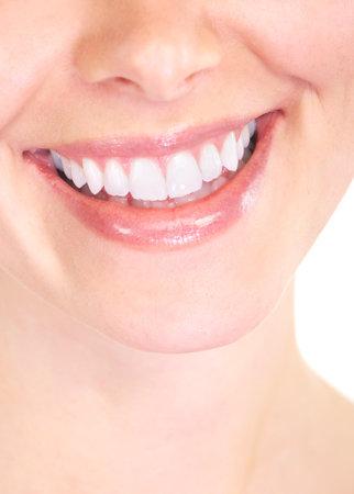 sonrisa: Sonrisa