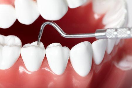 Teeth Stock Photo - 9407045