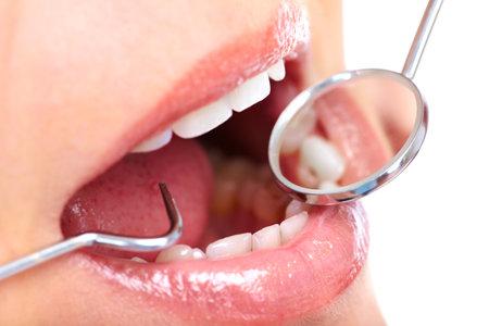 dental smile: healthy teeth