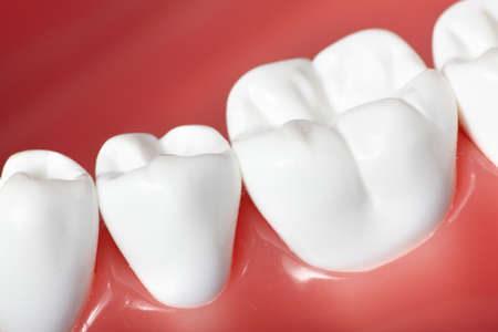 tooth whitening: Denti