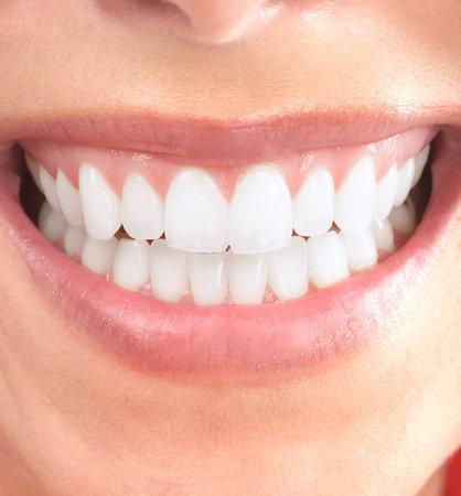 dientes con caries: Sonríe.