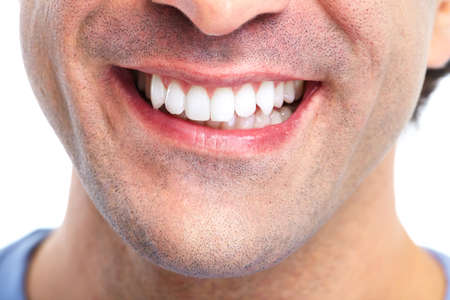 tooth whitening: Denti.