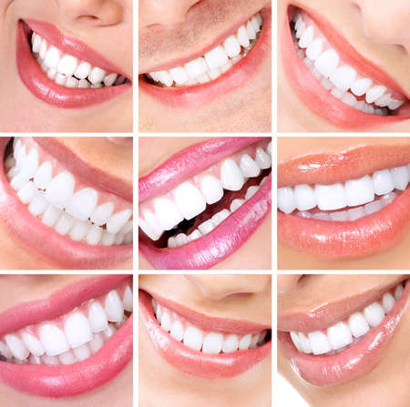 teeth whitening: Smile and teeth. Stock Photo