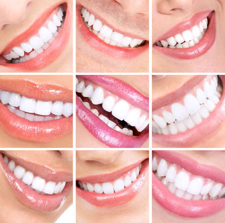 dentistry: Smile and teeth. Stock Photo