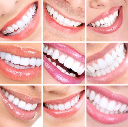 Sonrisa y los dientes. Foto de archivo - 11071123