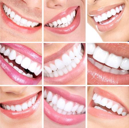 Lach en tanden. Stockfoto