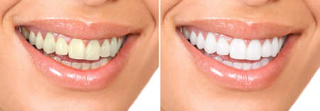 teeth whitening: Smile of a beautiful young woman .