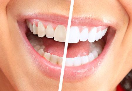 Happy smiling woman  版權商用圖片