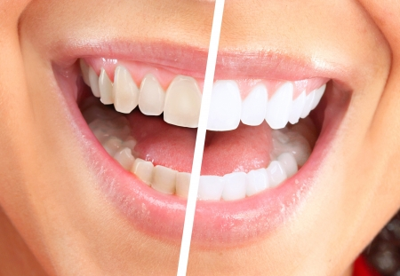 teeth white: Happy smiling woman  Stock Photo