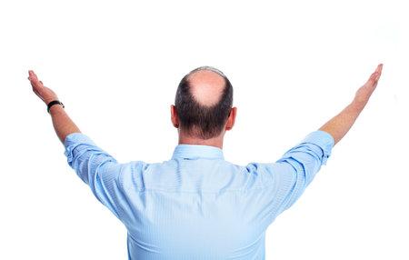 La pérdida del cabello del hombre calvo Foto de archivo - 13288692
