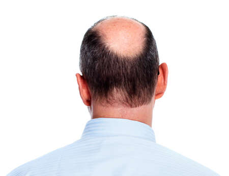 pelade: Hair loss  Bald man