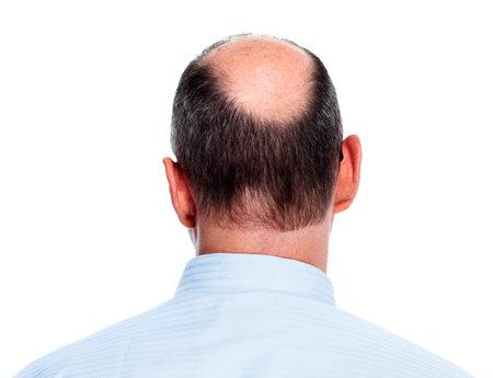 homme chauve: La perte de cheveux homme chauve