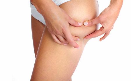 cellulite: Woman having a cellulite  Stock Photo
