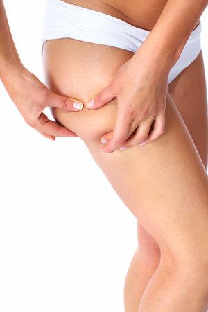 cellulite: Mujer que tiene una celulitis Foto de archivo