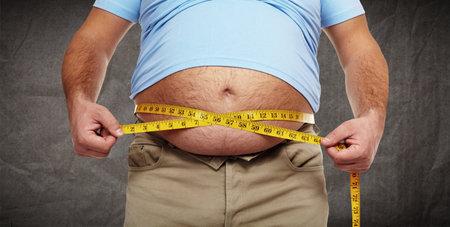 Obesity.