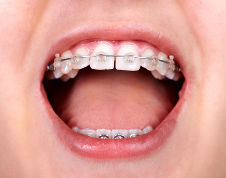 Teeth with orthodontic brackets. Dental health care. Foto de archivo