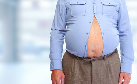 Obese man abdomen. Obesity and weight loss. 免版税图像