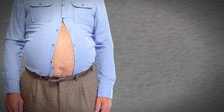 Obese man abdomen. Obesity and weight loss. 版權商用圖片