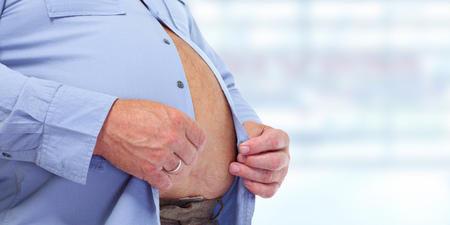 Obese man abdomen. Obesity and weight loss. Stockfoto