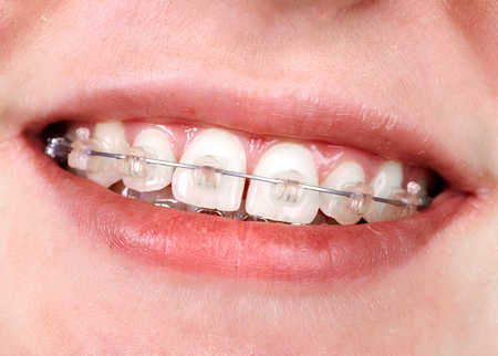 Teeth with orthodontic brackets. Dental health care. Stock Photo