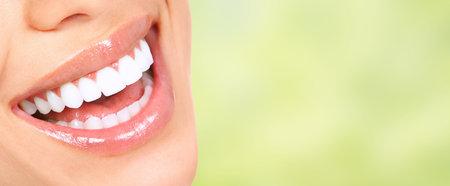 Schöne Frau, Lächeln mit gesunden weißen Zähnen. Dental Gesundheitspflege. Standard-Bild - 51262584