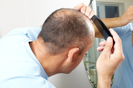 Man head close-up with a comb. Hair loss concept.