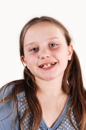 Young girl with missing teethes. Stock Photo - 4178828