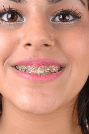 A close-up shot of a teenager face with braises on her teeth and pink lipstick and beautiful eyes.