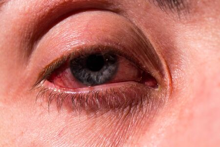 Pus arises from an infected eye. Near