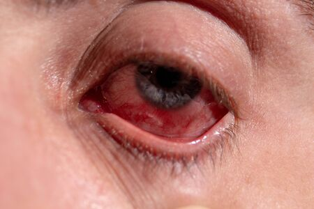 An eyelid is pulled out from a sick eye with inflamed veins from infection