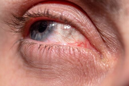 Red capillaries of an inflamed eye near