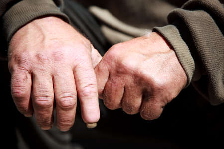 mendicant: hobo hands