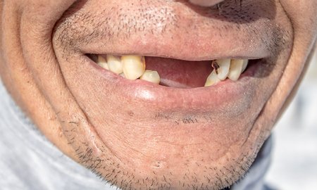 A man without teeth smiles