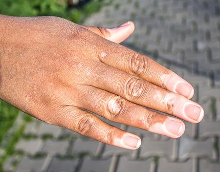 Vitiligo on the hand
