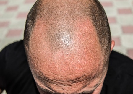 The head of a balding man is large