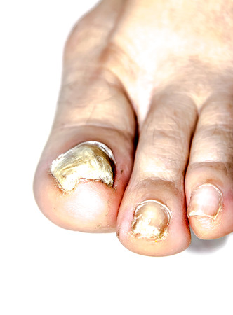 Fungal nail disease on the leg closeup Standard-Bild - 109474473