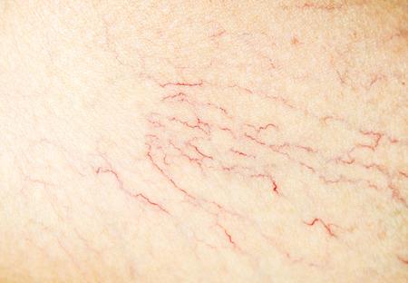 Varicose sul primo piano della gamba