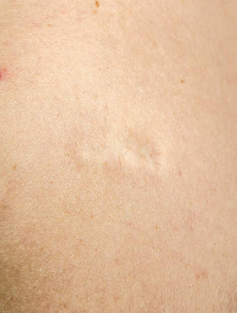 Scar from chickenpox vaccination