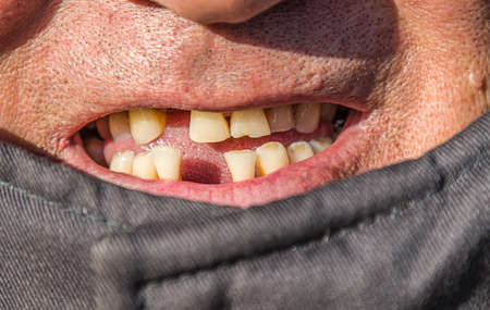 Smiling man without teeth close-up.